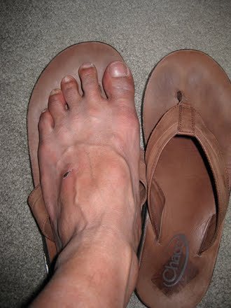 Flip Flops With Jeans - No Dice!!!
